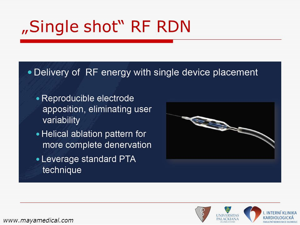 """Single shot RF RDN www.mayamedical.com"