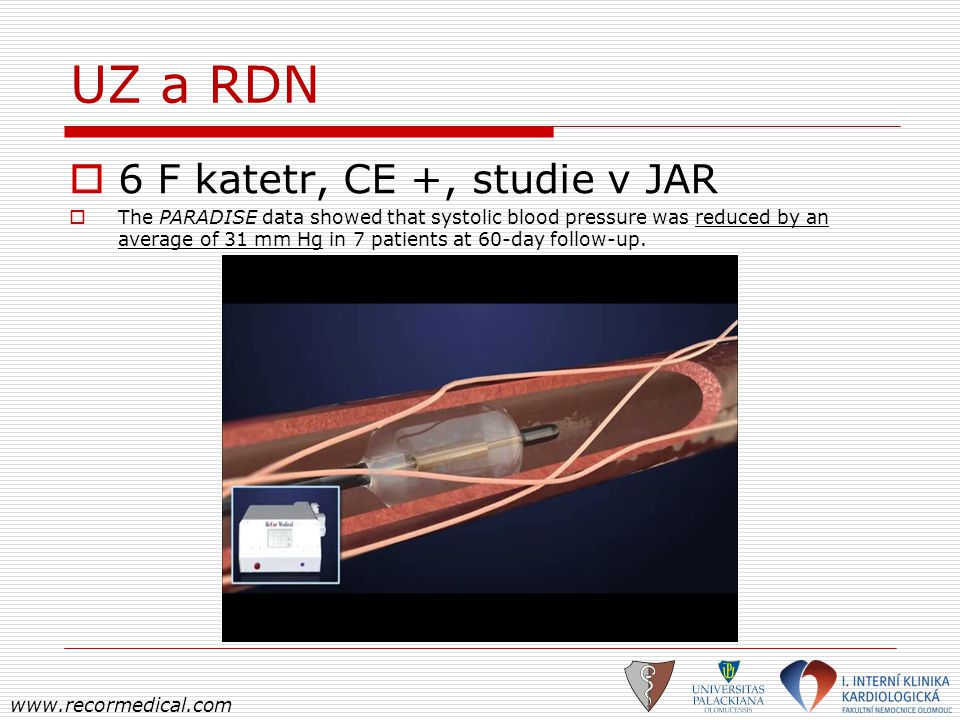 UZ a RDN 6 F katetr, CE +, studie v JAR