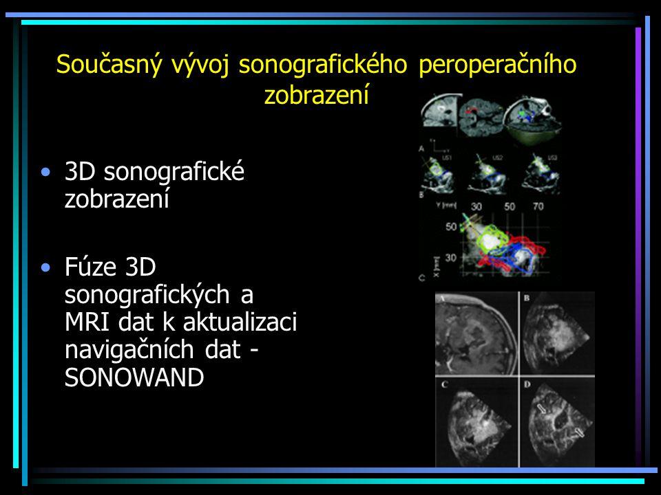 Současný vývoj sonografického peroperačního zobrazení