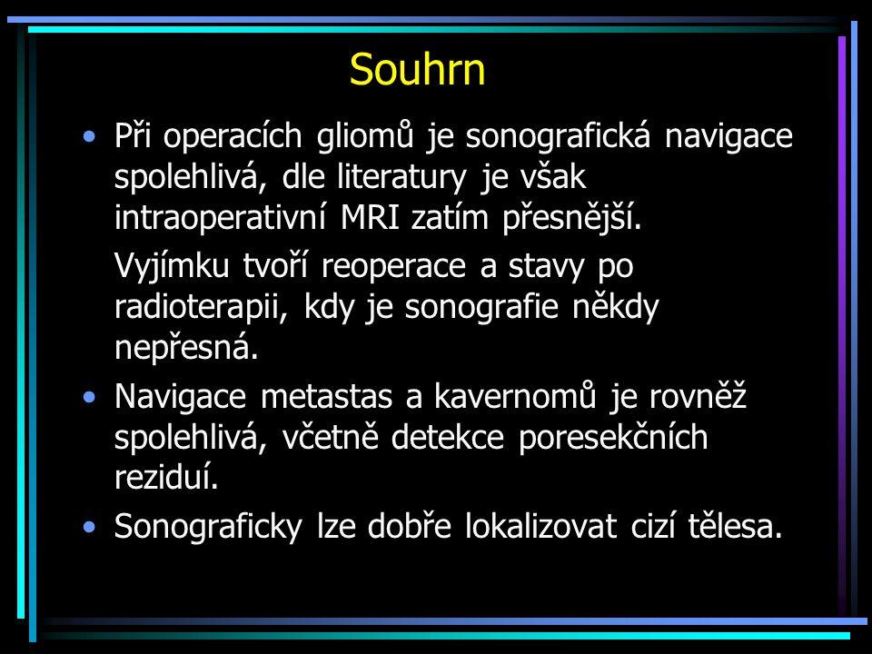 Souhrn Při operacích gliomů je sonografická navigace spolehlivá, dle literatury je však intraoperativní MRI zatím přesnější.