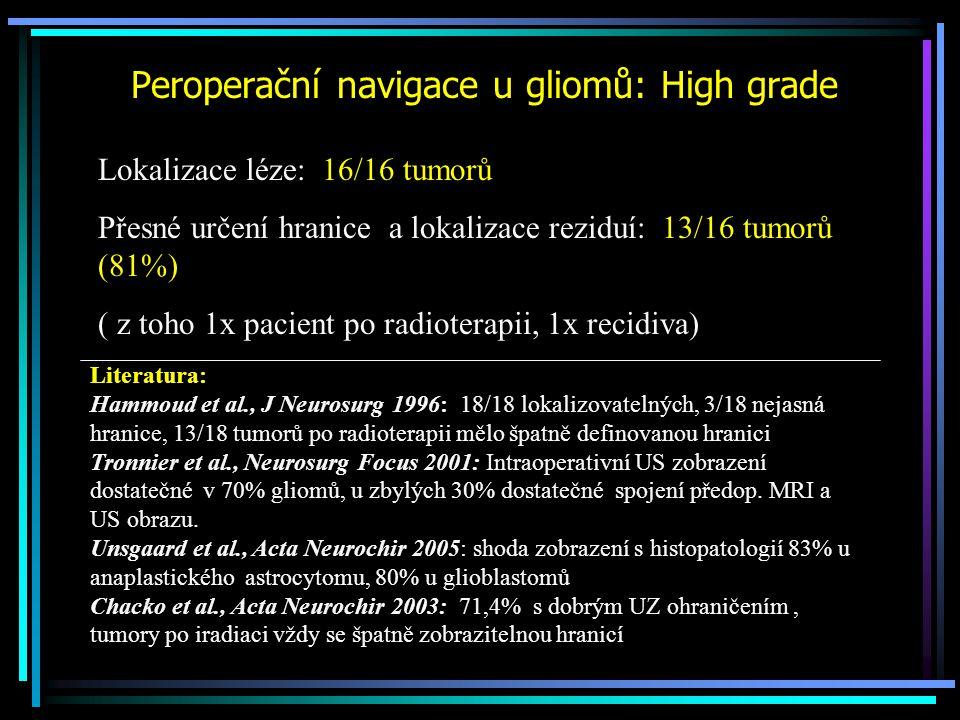 Peroperační navigace u gliomů: High grade
