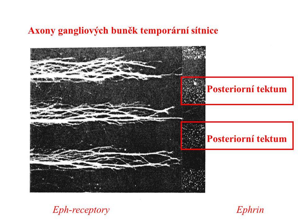 Axony gangliových buněk temporární sítnice