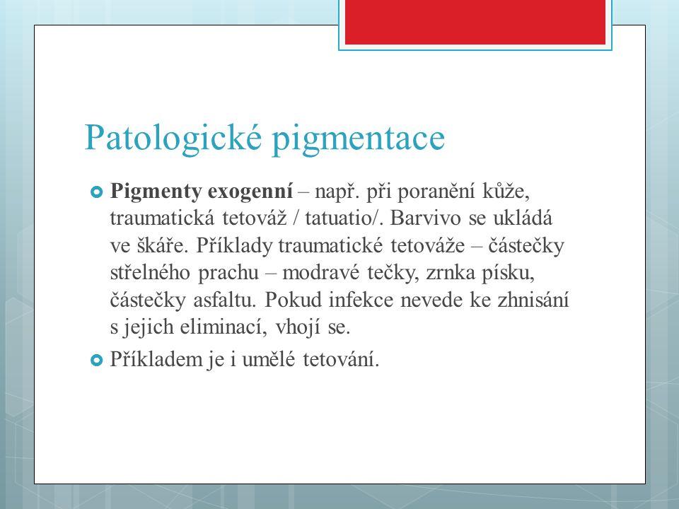 Patologické pigmentace