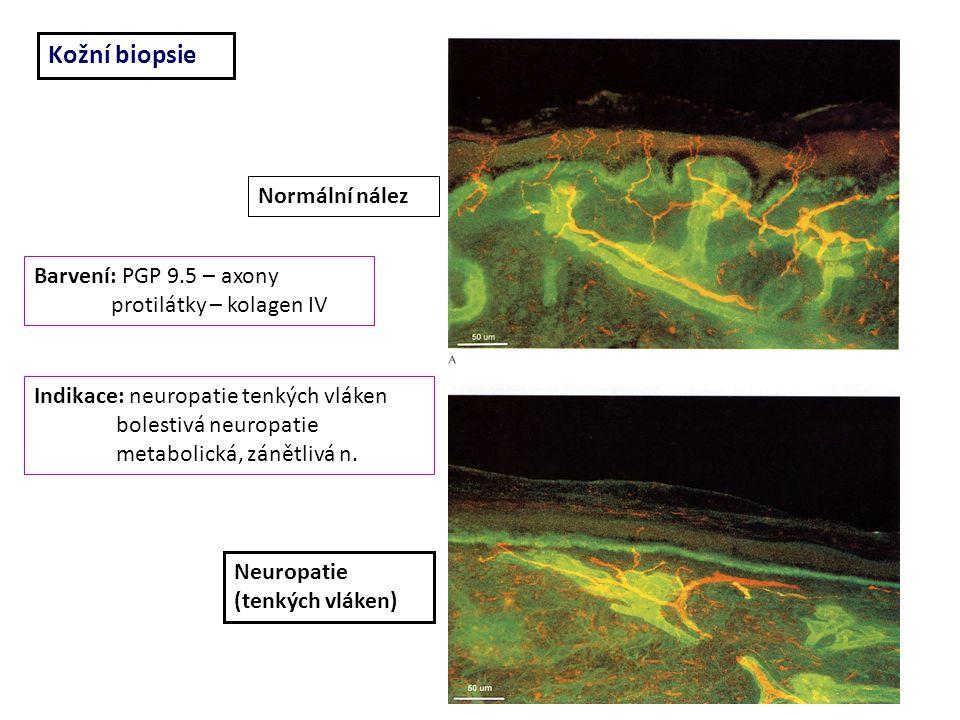 Kožní biopsie Normální nález Barvení: PGP 9.5 – axony