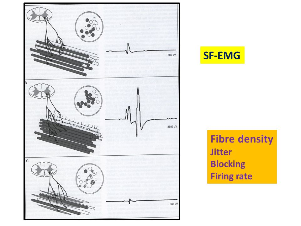 SF-EMG Fibre density Jitter Blocking Firing rate