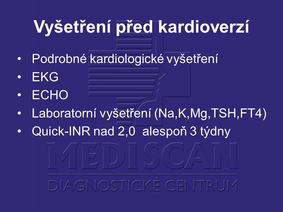 Vyšetření před kardioverzí