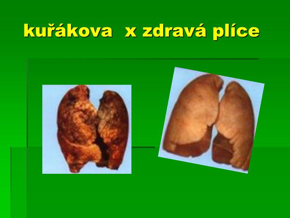 kuřákova x zdravá plíce