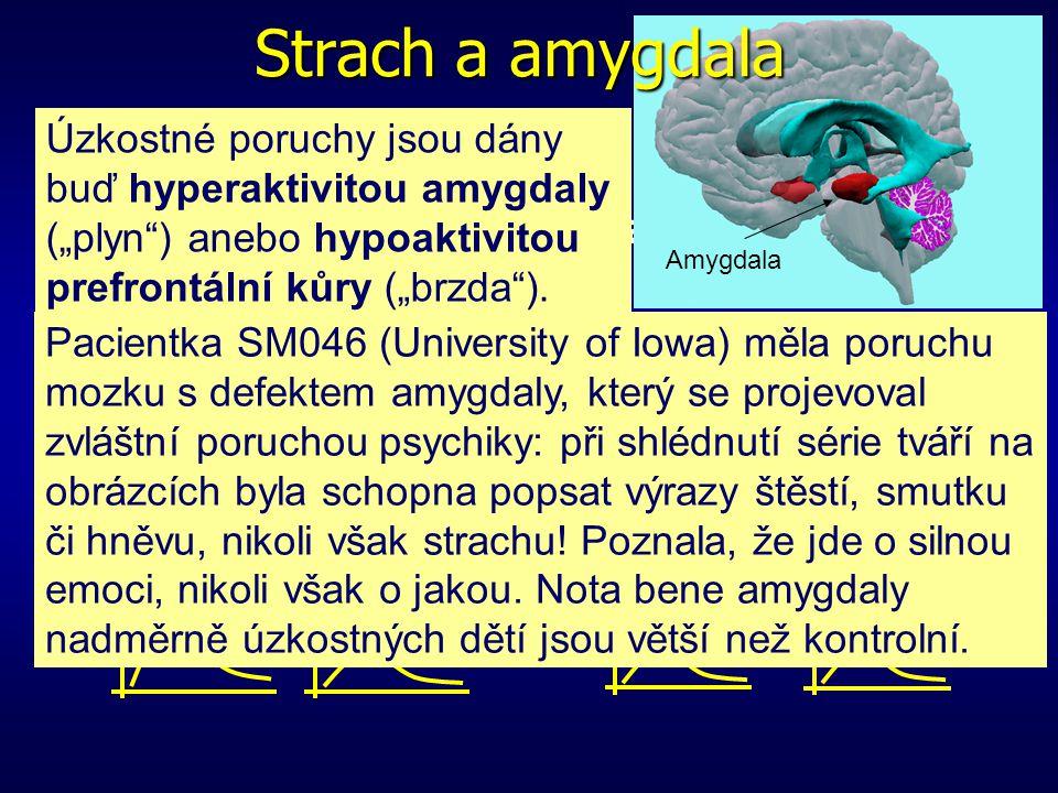 Léze centrálního jádra amygdaly