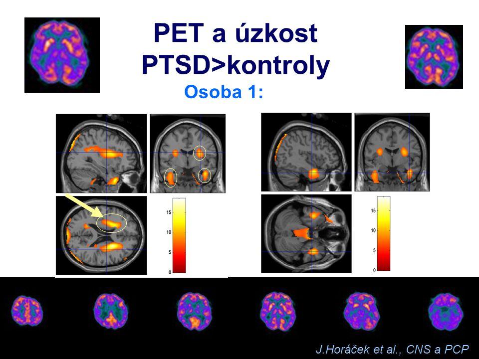 PET a úzkost PTSD>kontroly