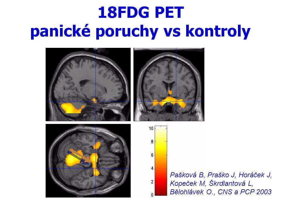 18FDG PET panické poruchy vs kontroly