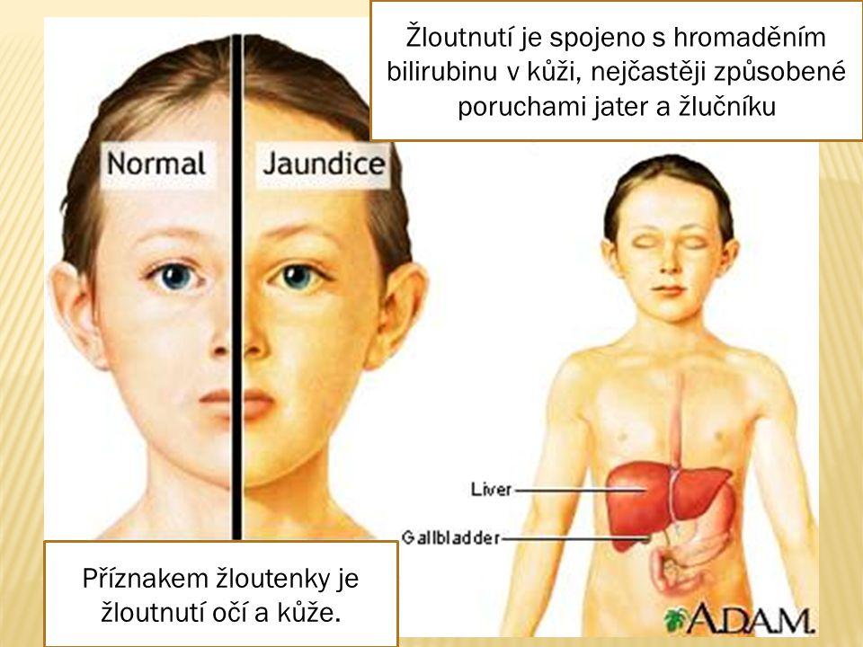 Příznakem žloutenky je žloutnutí očí a kůže.
