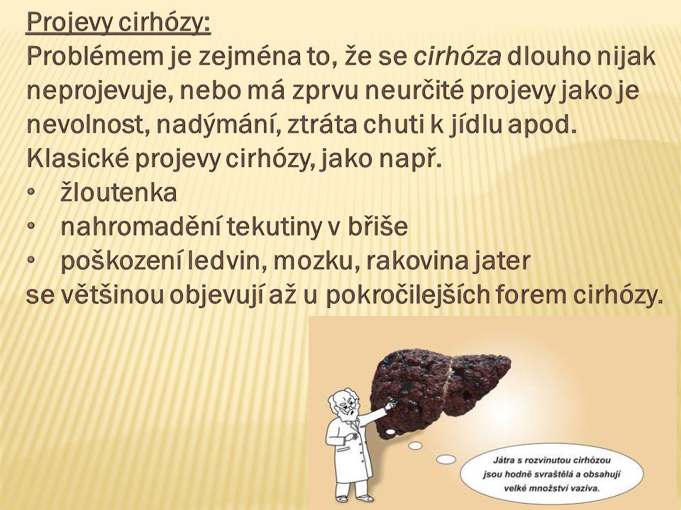 Projevy cirhózy: