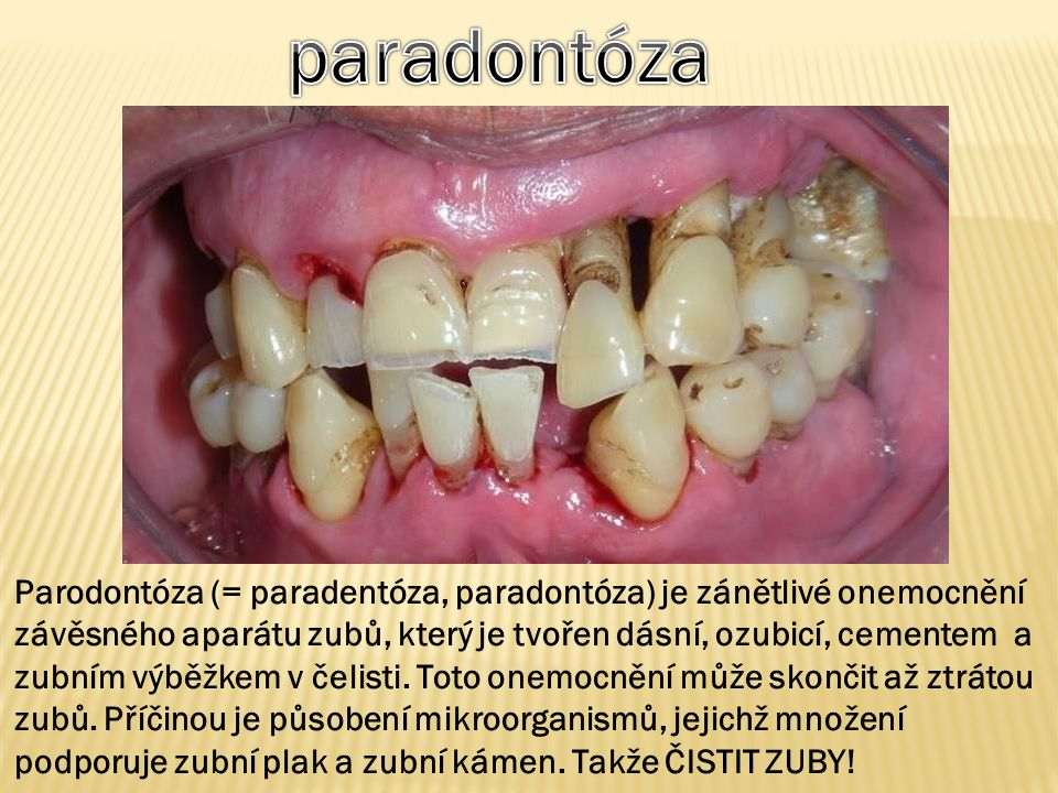 paradontóza
