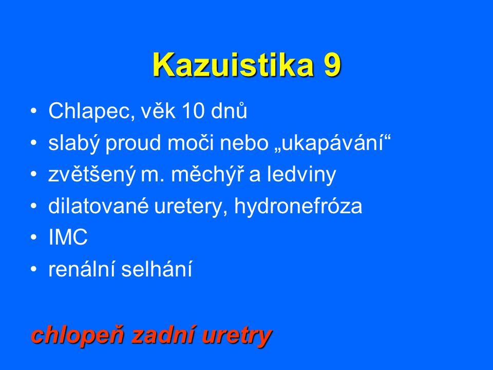 Kazuistika 9 chlopeň zadní uretry Chlapec, věk 10 dnů
