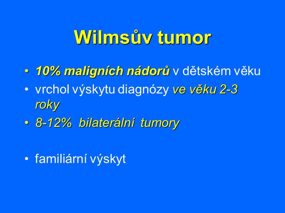 Wilmsův tumor 10% maligních nádorů v dětském věku