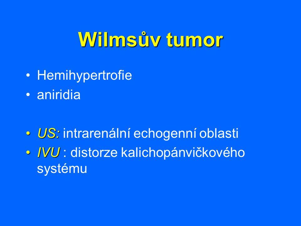 Wilmsův tumor Hemihypertrofie aniridia