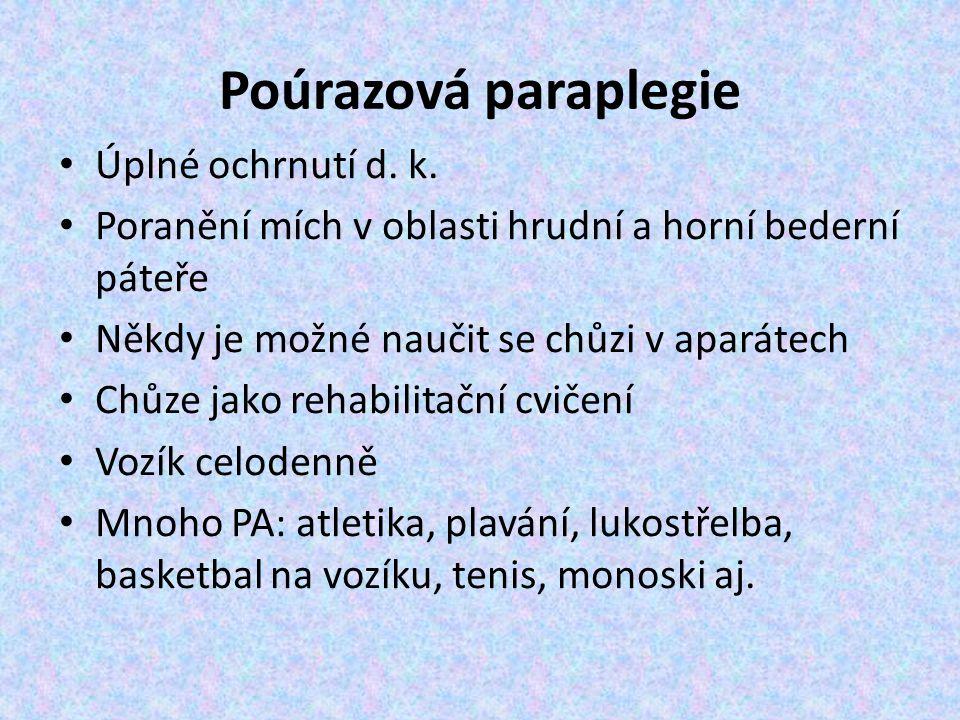 Poúrazová paraplegie Úplné ochrnutí d. k.