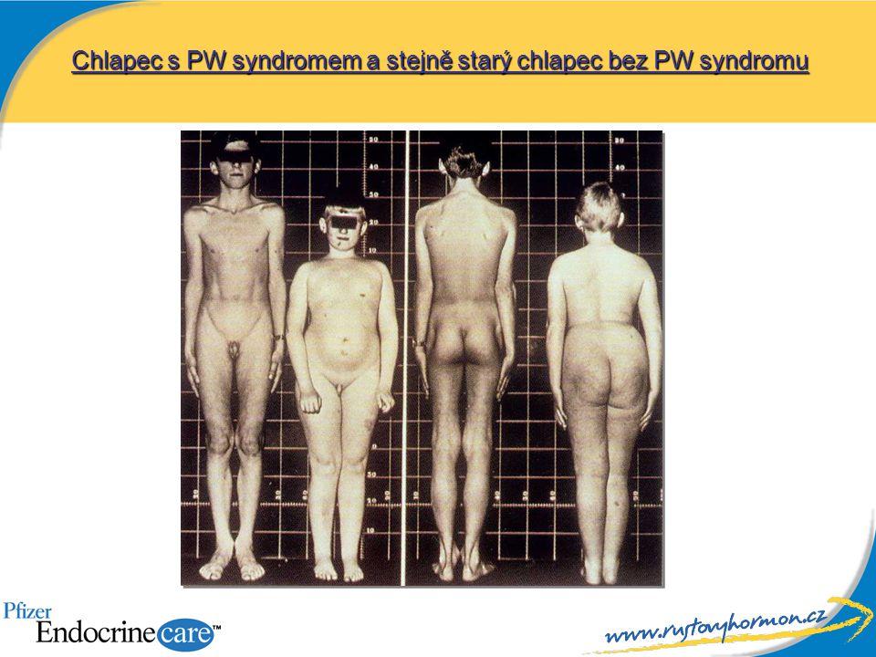 Chlapec s PW syndromem a stejně starý chlapec bez PW syndromu