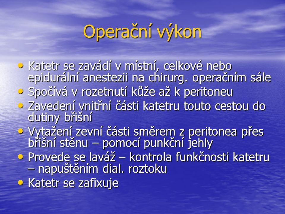 Operační výkon Katetr se zavádí v místní, celkové nebo epidurální anestezii na chirurg. operačním sále.