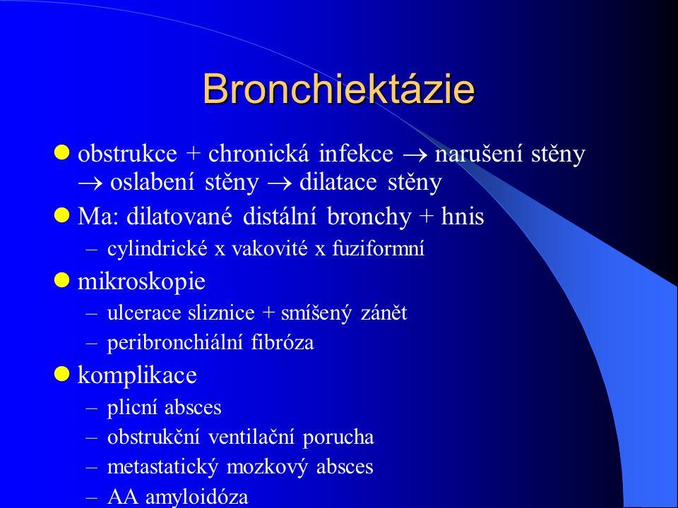 Bronchiektázie obstrukce + chronická infekce  narušení stěny  oslabení stěny  dilatace stěny. Ma: dilatované distální bronchy + hnis.