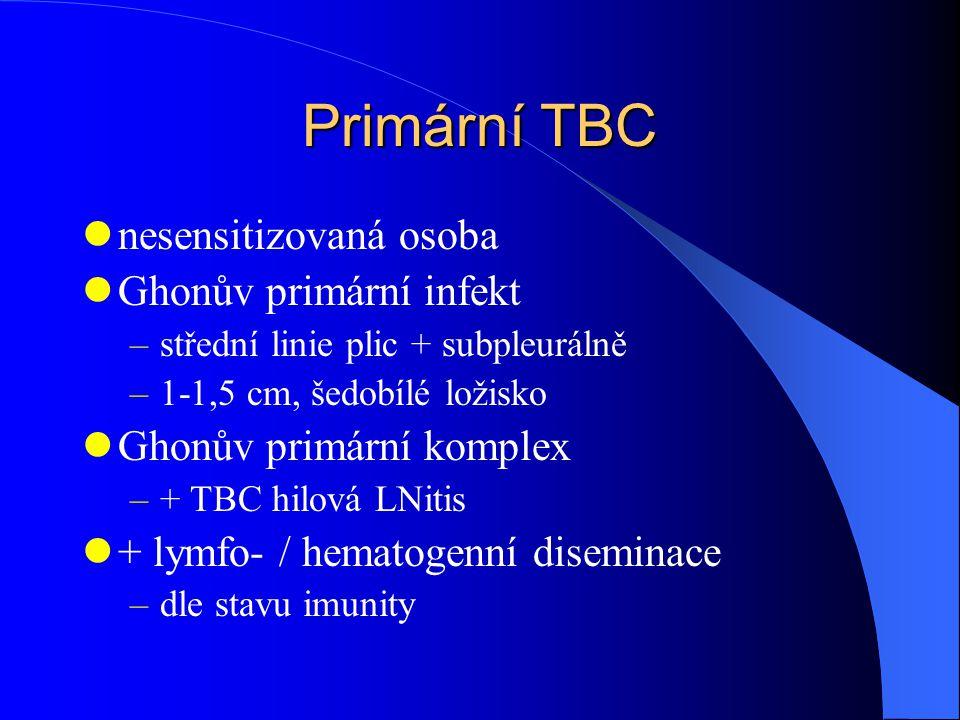 Primární TBC nesensitizovaná osoba Ghonův primární infekt