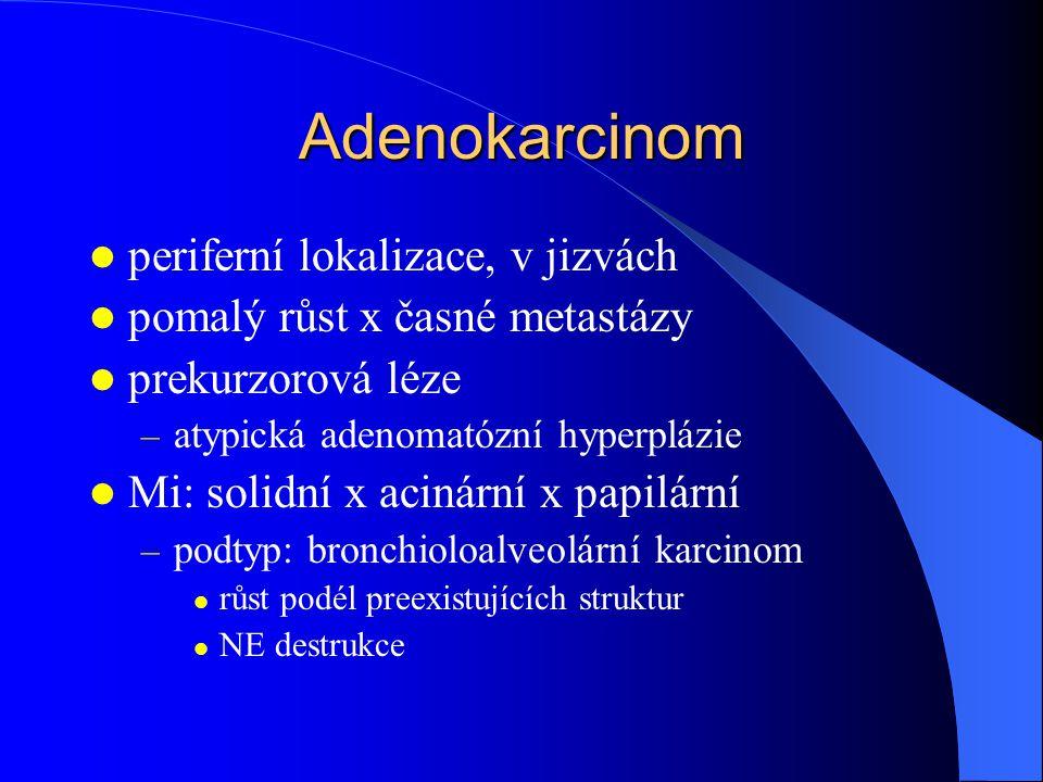 Adenokarcinom periferní lokalizace, v jizvách