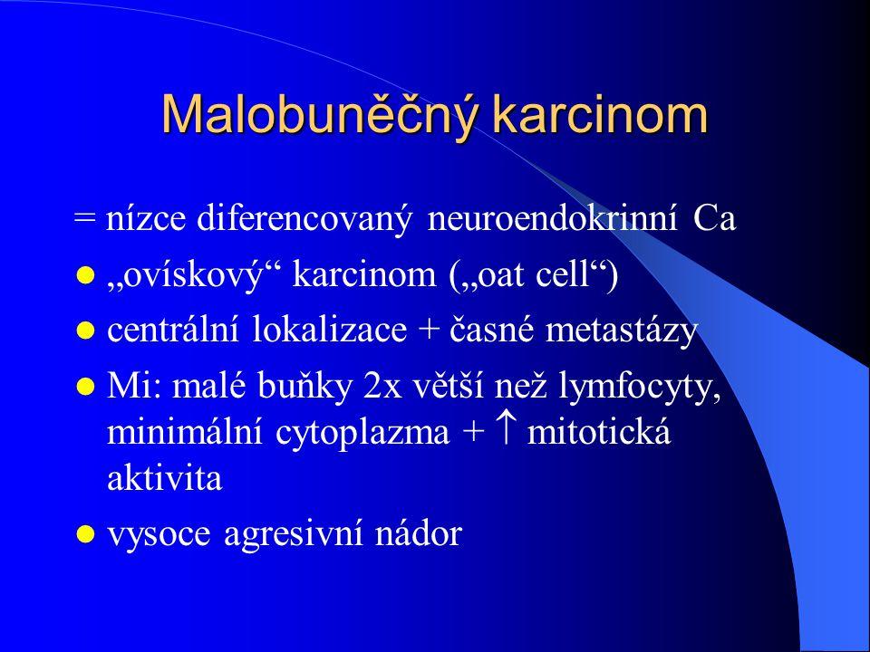 Malobuněčný karcinom = nízce diferencovaný neuroendokrinní Ca