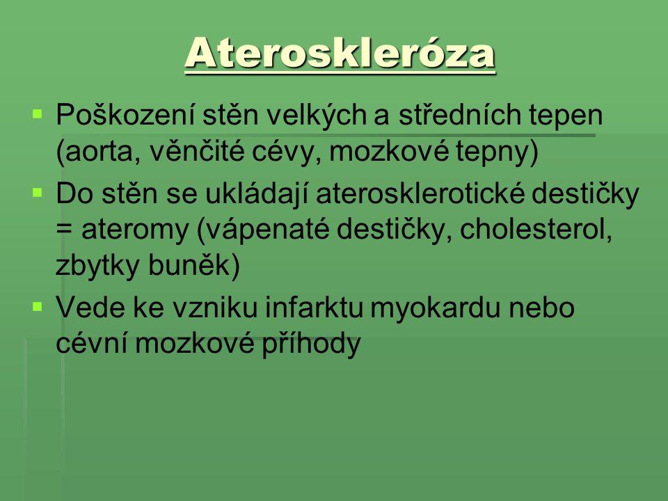 Ateroskleróza Poškození stěn velkých a středních tepen (aorta, věnčité cévy, mozkové tepny)