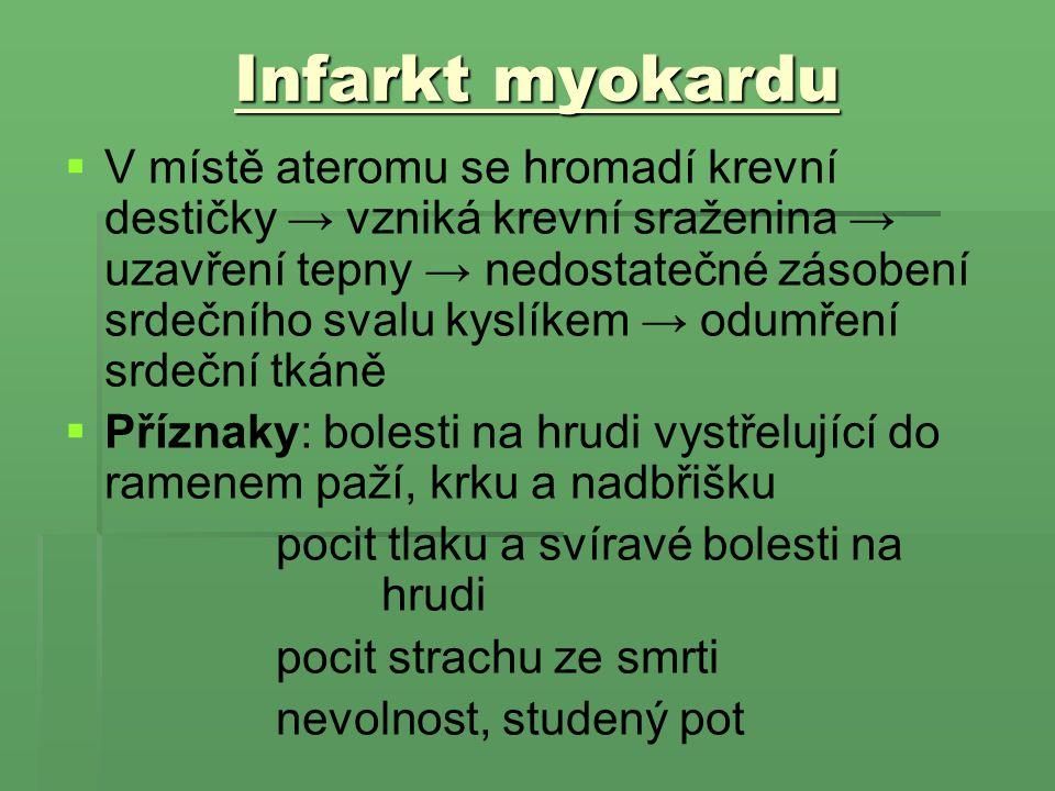 Infarkt myokardu
