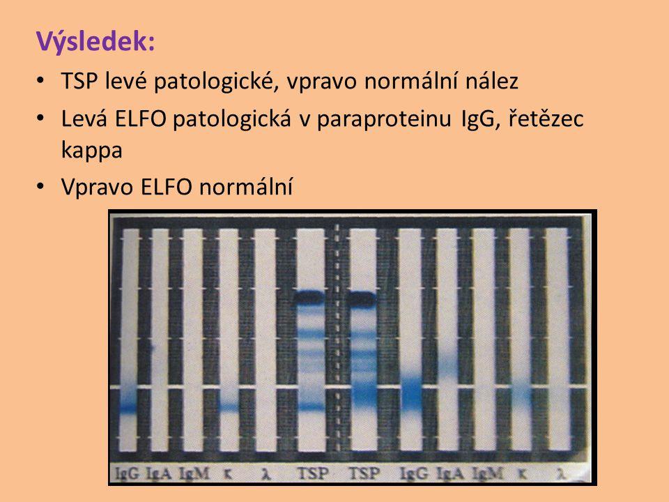 Výsledek: TSP levé patologické, vpravo normální nález