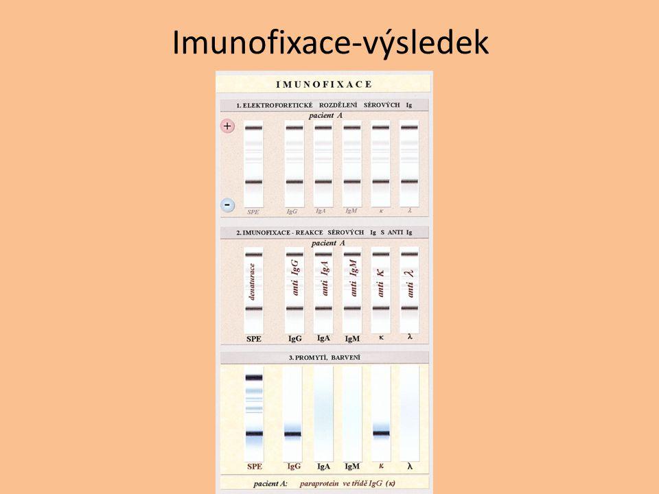 Imunofixace-výsledek