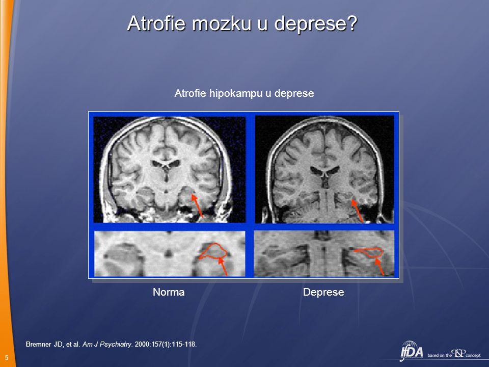 Atrofie mozku u deprese