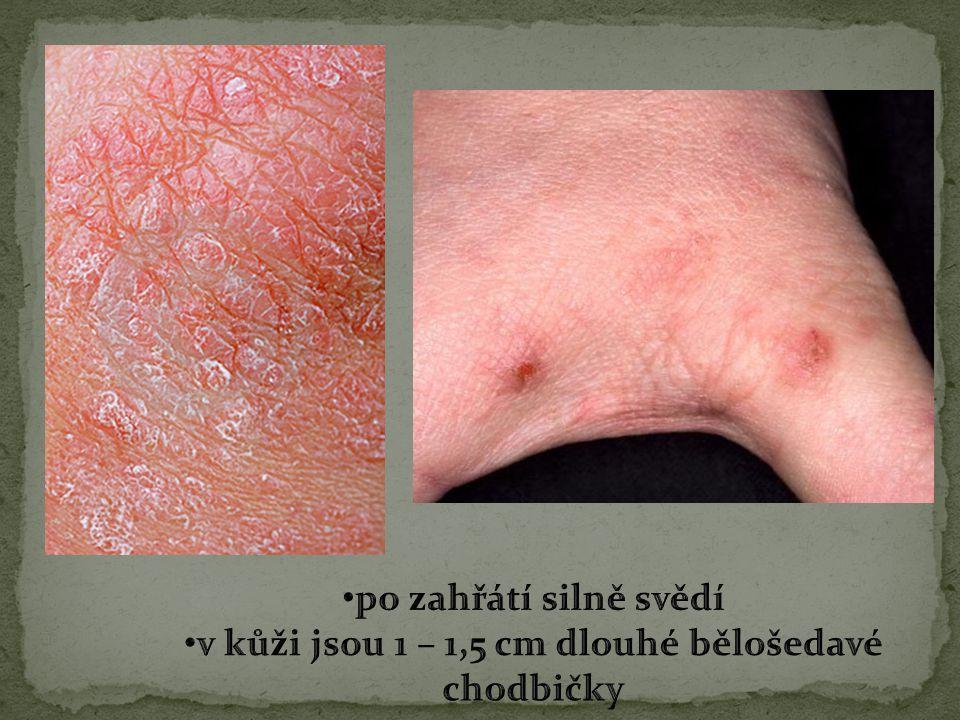 v kůži jsou 1 – 1,5 cm dlouhé bělošedavé chodbičky