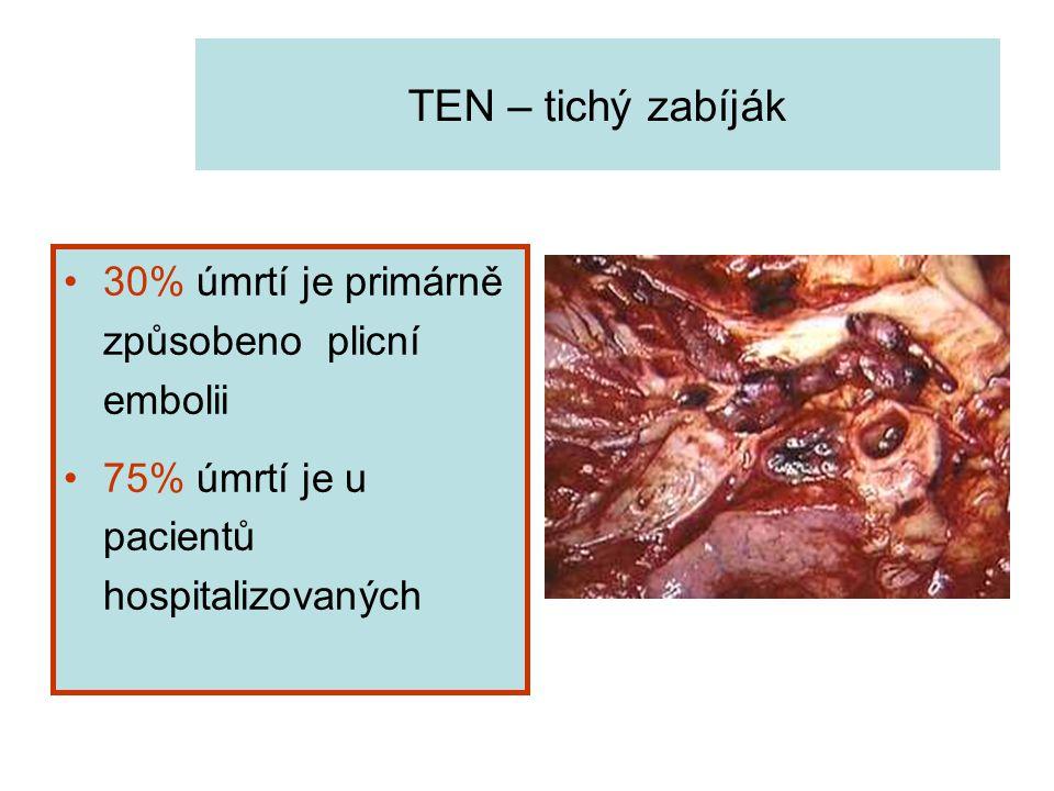 TEN – tichý zabíják 30% úmrtí je primárně způsobeno plicní embolii
