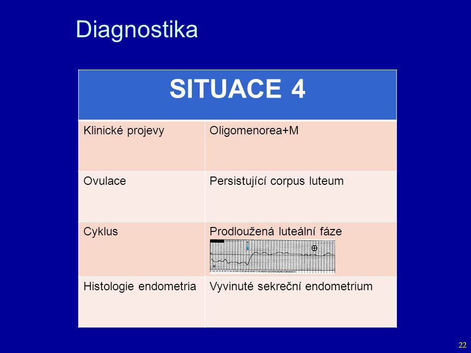 SITUACE 4 Diagnostika Klinické projevy Oligomenorea+M Ovulace