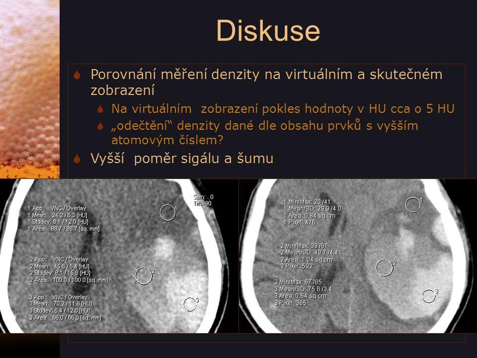 Diskuse Porovnání měření denzity na virtuálním a skutečném zobrazení