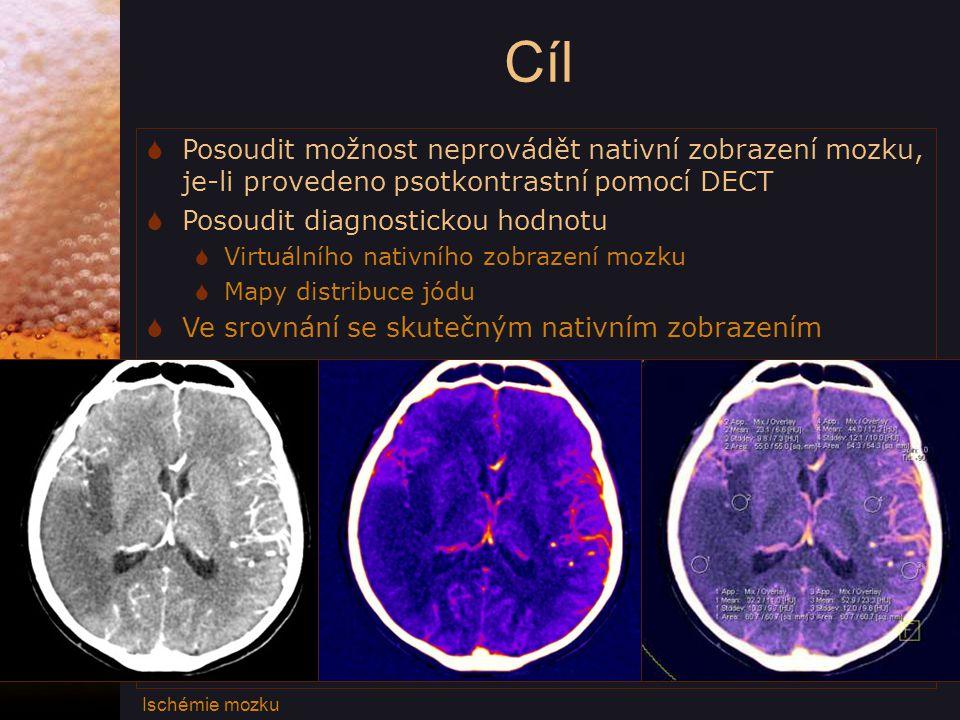 Cíl Posoudit možnost neprovádět nativní zobrazení mozku, je-li provedeno psotkontrastní pomocí DECT.