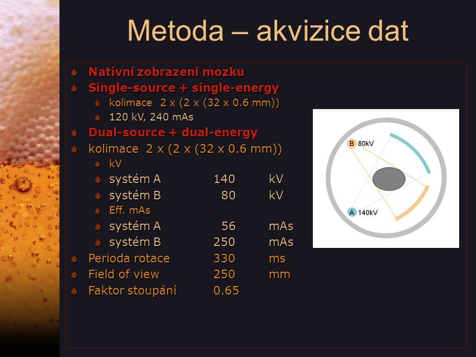 Metoda – akvizice dat Nativní zobrazení mozku