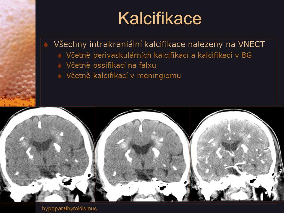 Kalcifikace Všechny intrakraniální kalcifikace nalezeny na VNECT