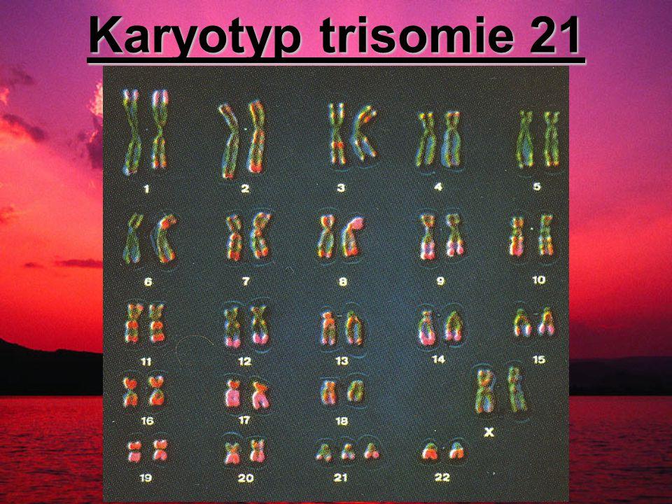 Karyotyp trisomie 21