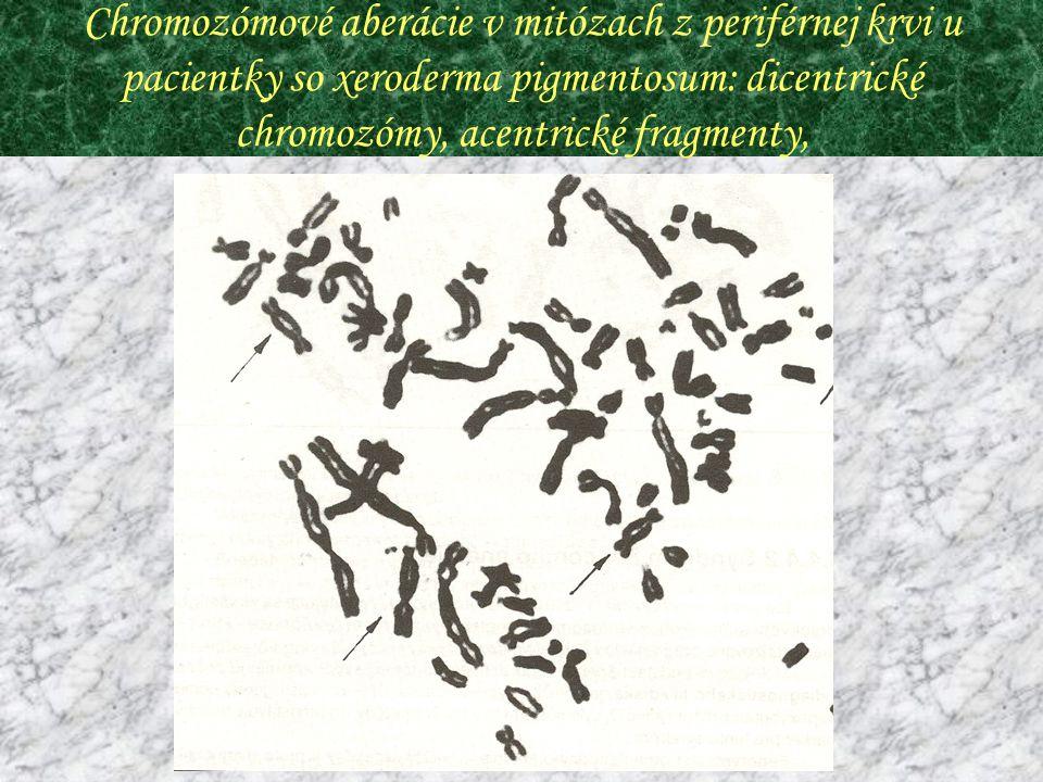 Chromozómové aberácie v mitózach z periférnej krvi u pacientky so xeroderma pigmentosum: dicentrické chromozómy, acentrické fragmenty,