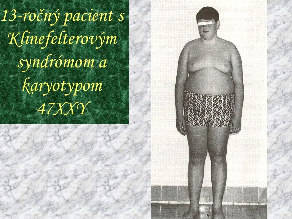 13-ročný pacient s Klinefelterovým syndrómom a karyotypom 47XXY