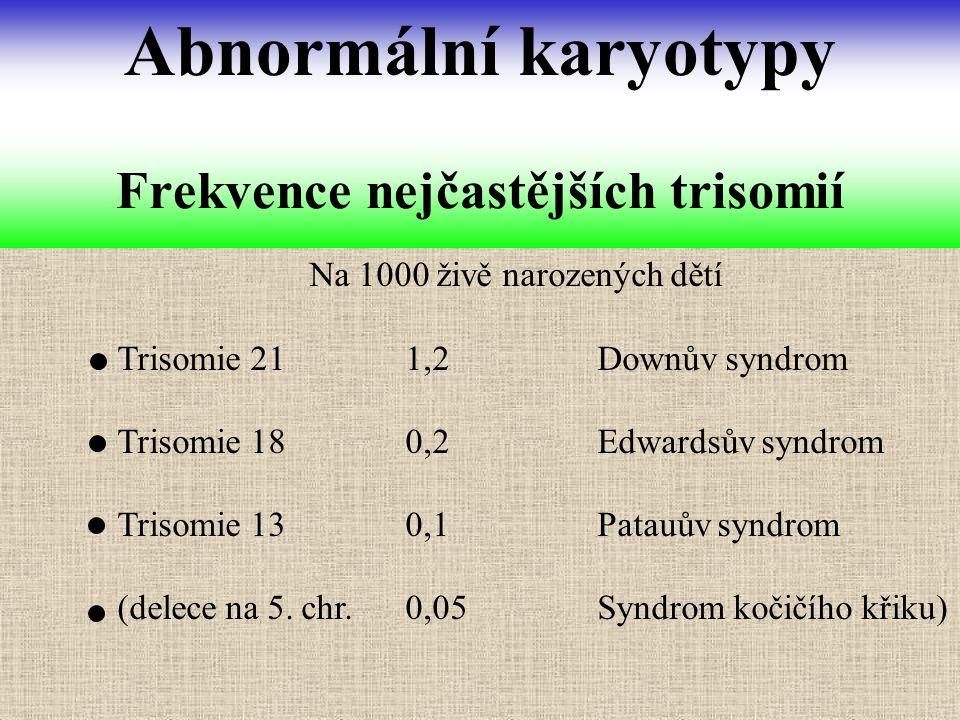 Frekvence nejčastějších trisomií