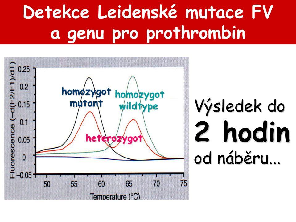 Detekce Leidenské mutace FV