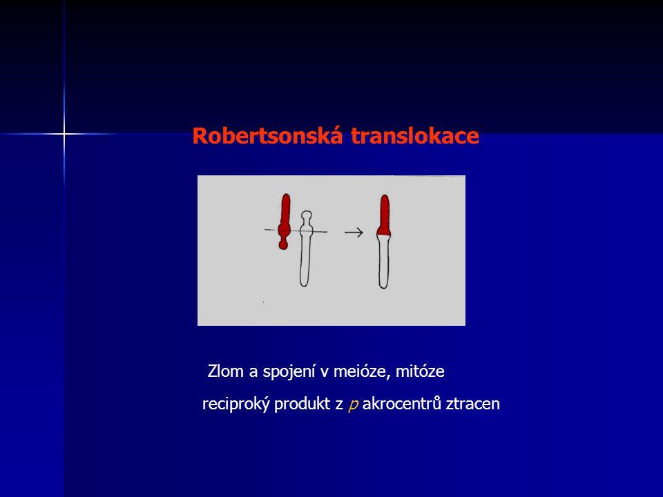 Robertsonská translokace
