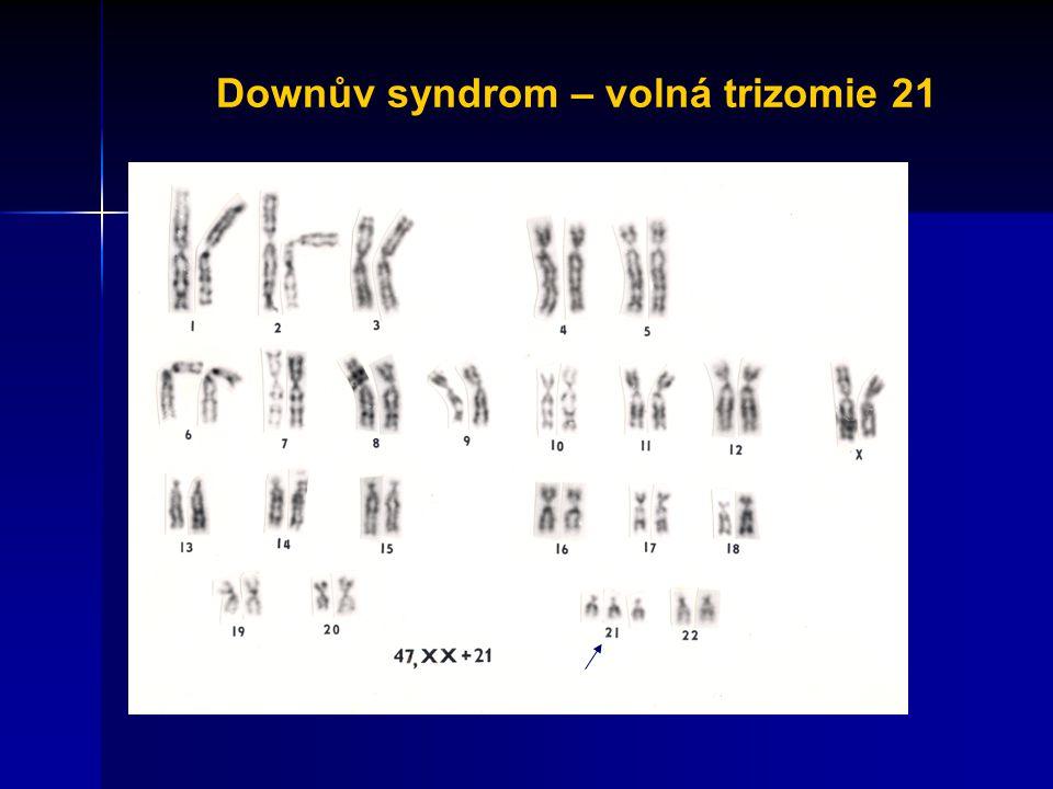 Downův syndrom – volná trizomie 21