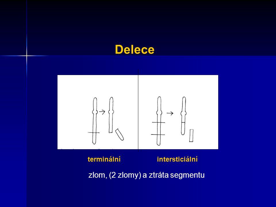 Delece terminální intersticiální zlom, (2 zlomy) a ztráta segmentu