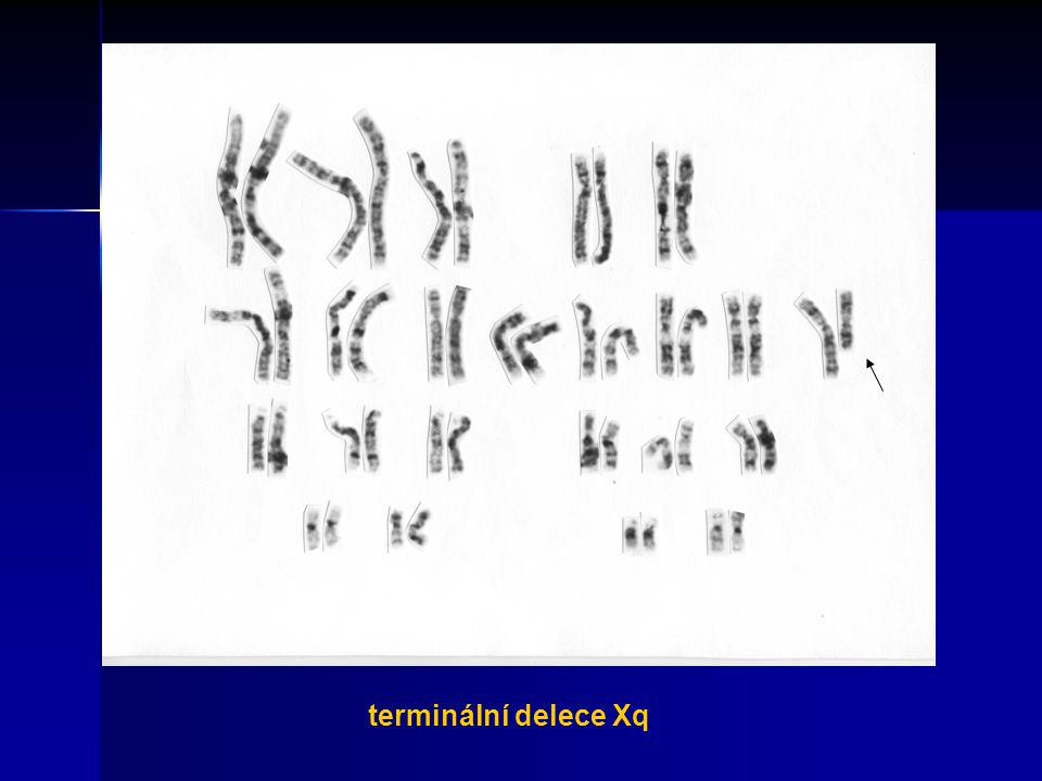 terminální delece Xq