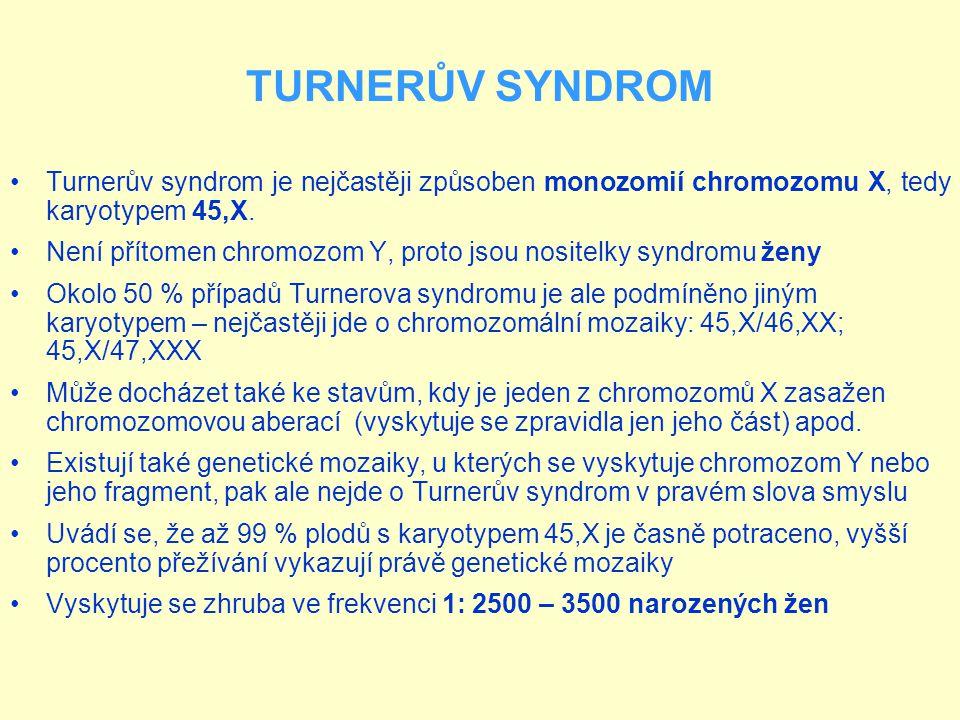 TURNERŮV SYNDROM Turnerův syndrom je nejčastěji způsoben monozomií chromozomu X, tedy karyotypem 45,X.