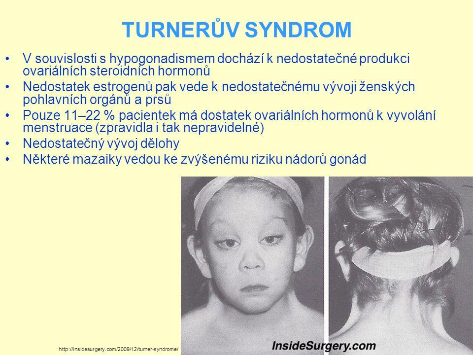 TURNERŮV SYNDROM V souvislosti s hypogonadismem dochází k nedostatečné produkci ovariálních steroidních hormonů.